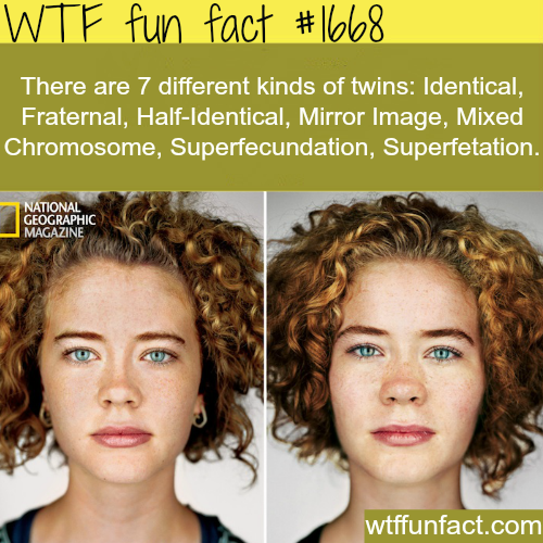 7 Kinds of twins - WTF fun facts