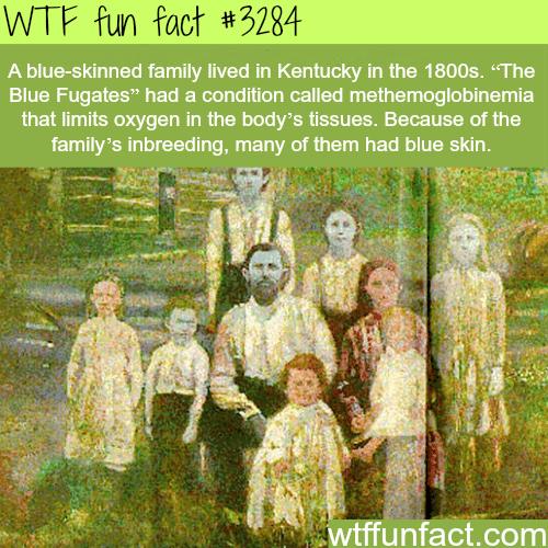 Blue skin people -WTF fun facts