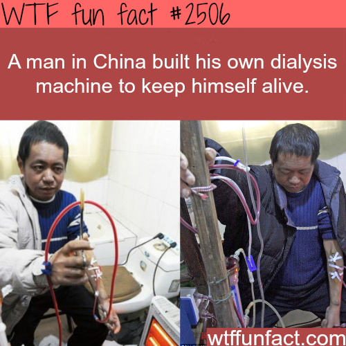 Dialysis machine built by a Chinese man - WTF fun facts