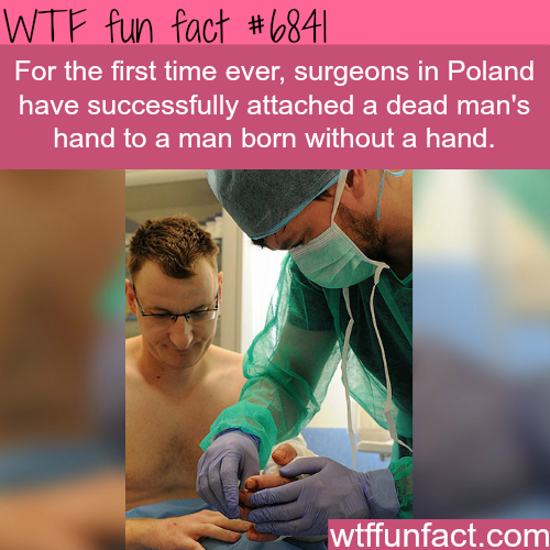 Polish surgeon attach a dead man's hand to a man without a hand- WTF fun fact