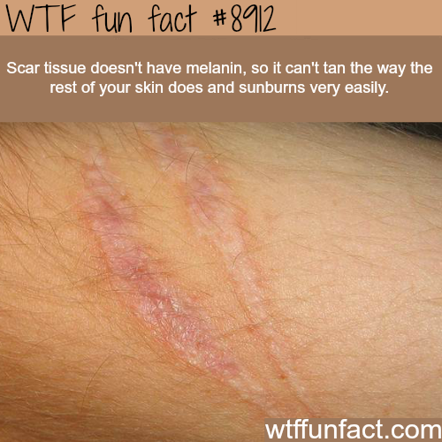 Scar tissue - WTF fun facts
