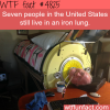 seven people are living in iron lungs in the usa