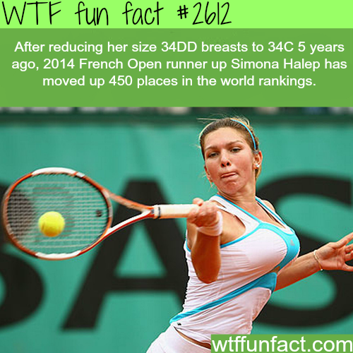 Simona Halep's breasts reduction - WTF fun facts