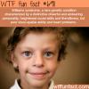 williams syndrome wtf fun fact