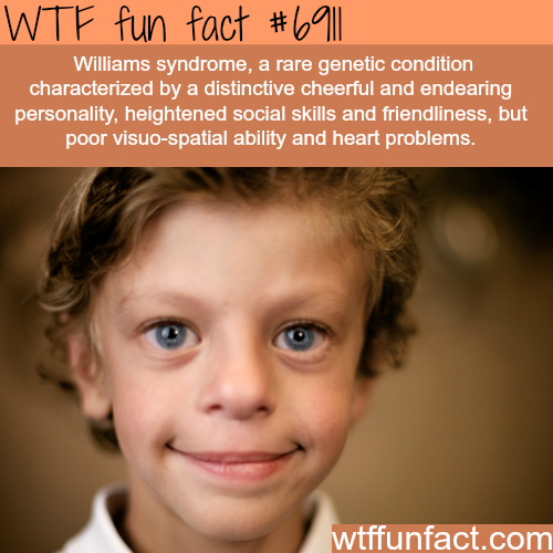 Williams syndrome - WTF fun fact