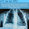 worlds densest bones wtf fun fact