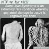 WTF Fun Fact – Stone Man Syndrome
