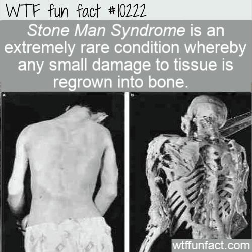 WTF Fun Fact - Stone Man Syndrome