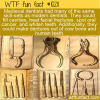 WTF Fun Fact – Medieval Dentistry