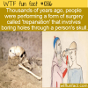 WTF Fun Fact – Trepanation