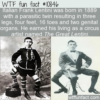 WTF Fun Fact – The Great Lentini