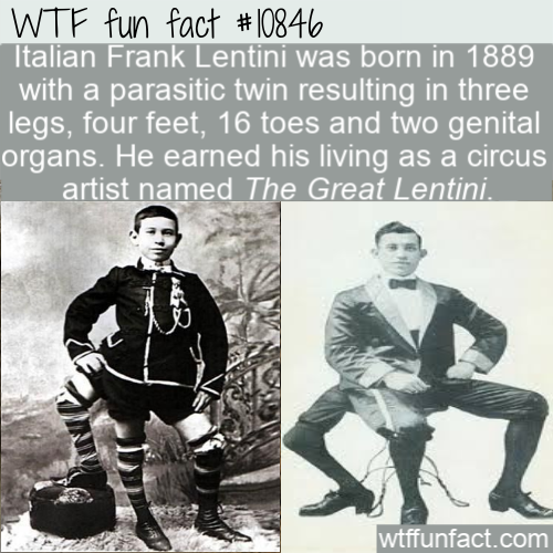 WTF Fun Fact - Artist With Three Legs