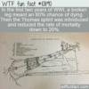 WTF Fun Fact – Broken Leg Meant Death