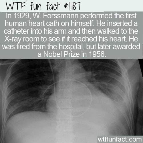 WTF Fun Fact - First Human Heart Cath