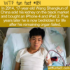 WTF Fun Fact – Kidney For An iPad & iPhone