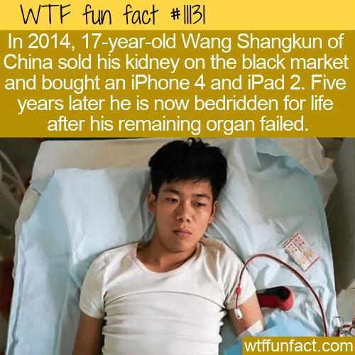 WTF Fun Fact - Kidney For An Iphone & Ipad