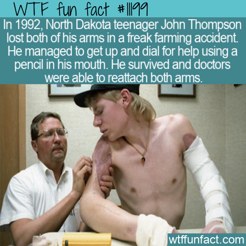 WTF Fun Fact - John Thompson Lost Both Arms