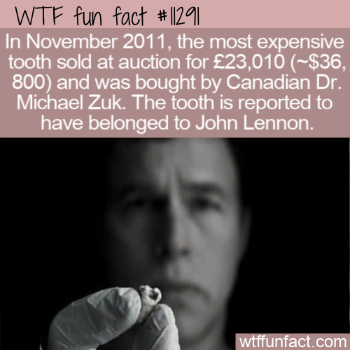 WTF Fun Fact - Most Expensive Tooth