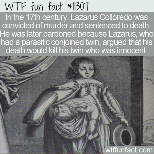 WTF Fun Fact - Parasitic Conjoined Twin