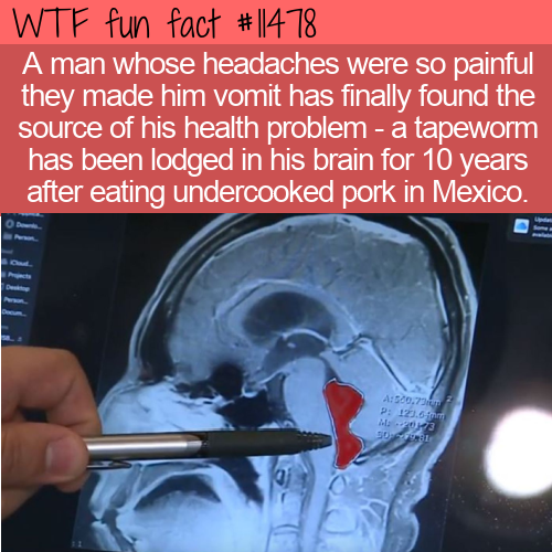 WTF Fun Fact - Tapeworm In Brain