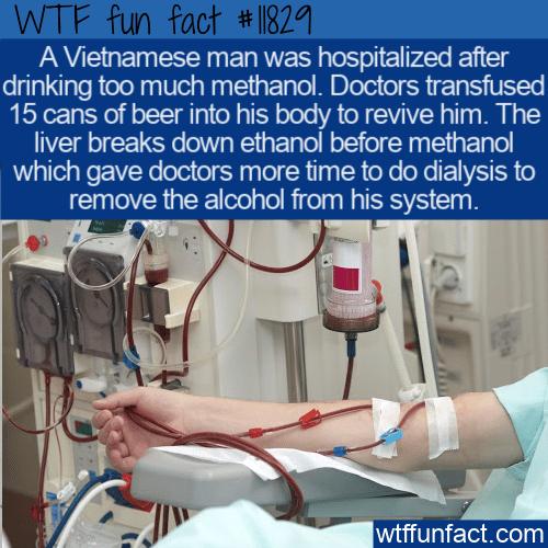 WTF Fun Fact - Beer Transfusion Saves Mans Life