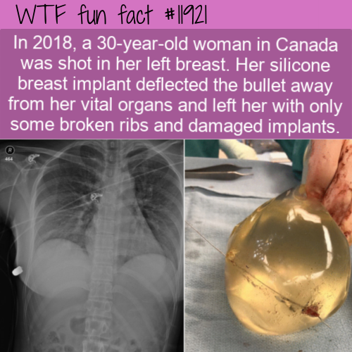 WTF Fun Fact - Breast Implant Deflects Bullet