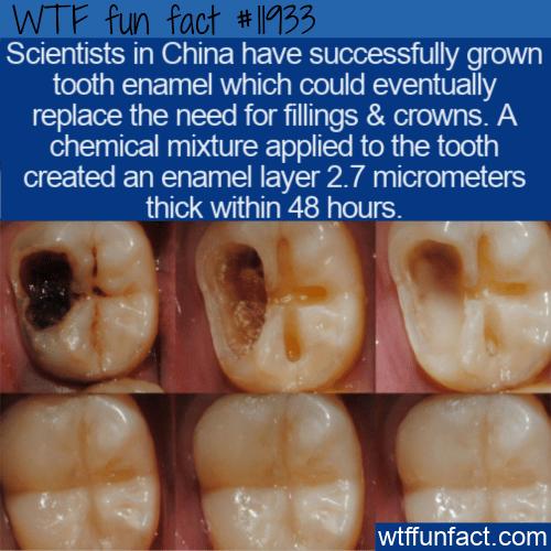 WTF Fun Fact - Gel To Regrow Tooth Enamel