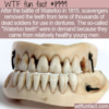 WTF Fun Fact – Waterloo Teeth